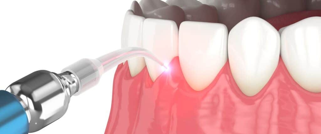 laser u stomatologiji - dentalni laser - laser odontoiatrico