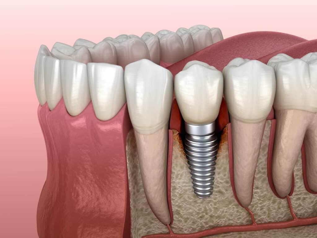 peri-implantitis - peri-implantite