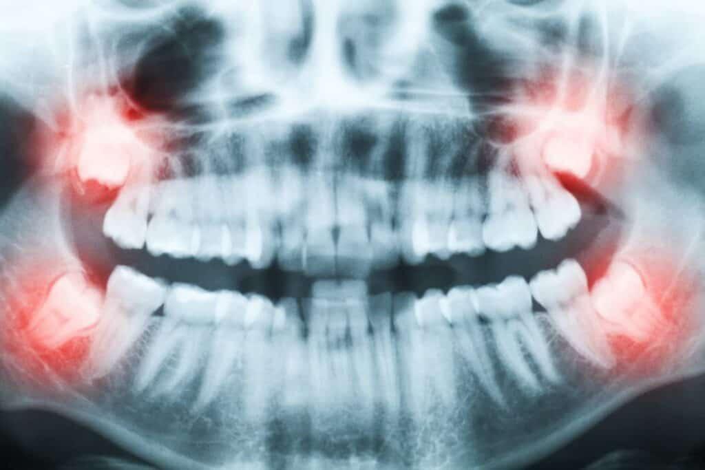 umnjaci - denti del giudizio