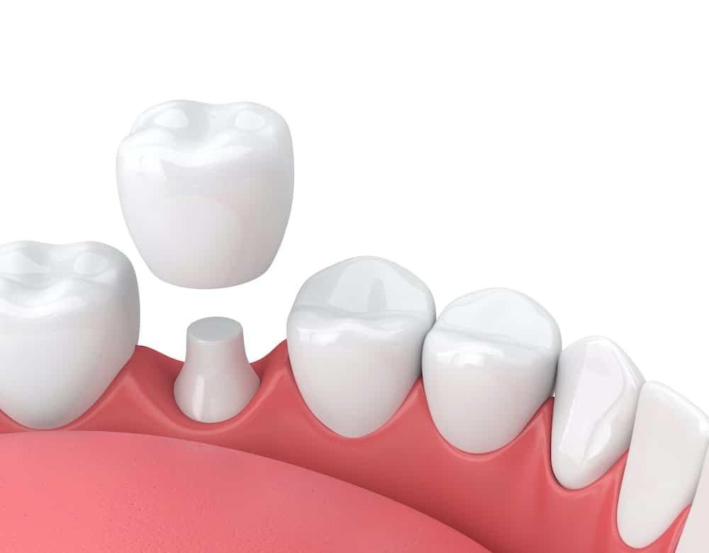 privremena krunica - capsula dente provvisoria - denti provvisori