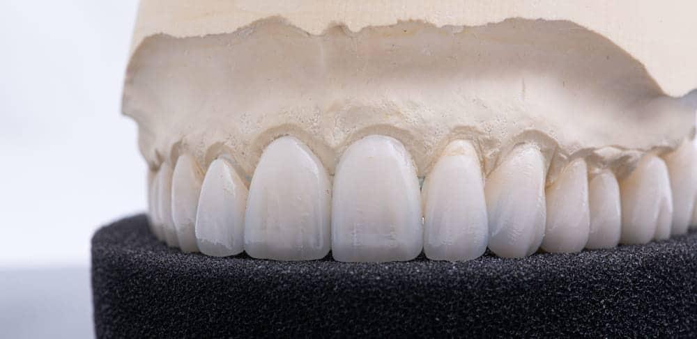 privremeni zubni most - privremena krunica - capsula dente provvisoria - denti provvisori