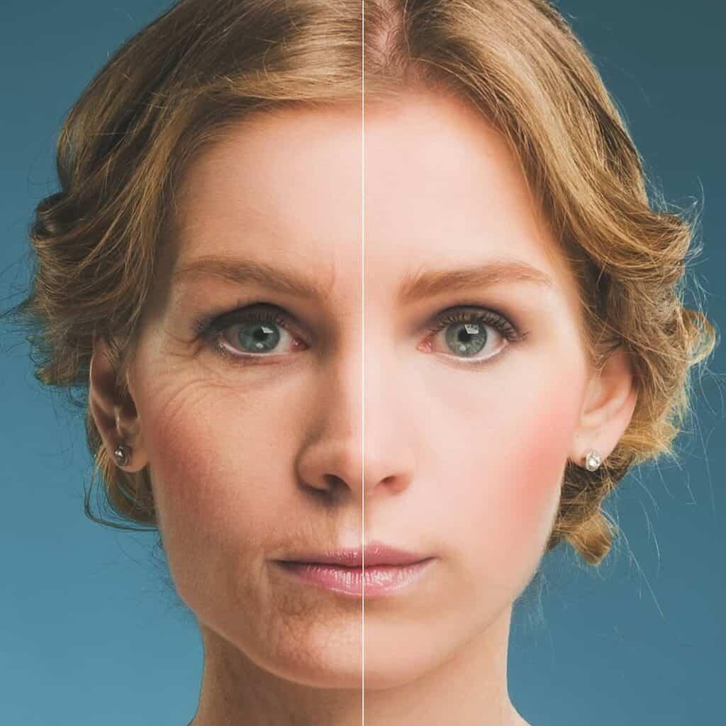 Izgled prije i nakon tretman