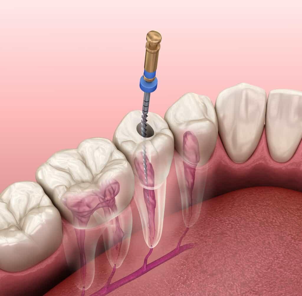 Čišćenje korijenskog kanala zuba