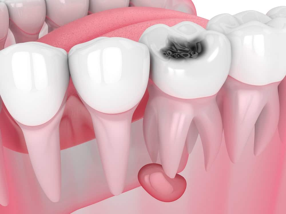 Granulom zuba - Granuloma dentale