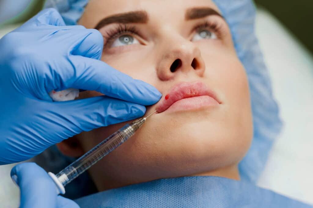 Hijaluronski fileri 4 min   Filler acido ialuronico viso - 10 cose utili da sapere