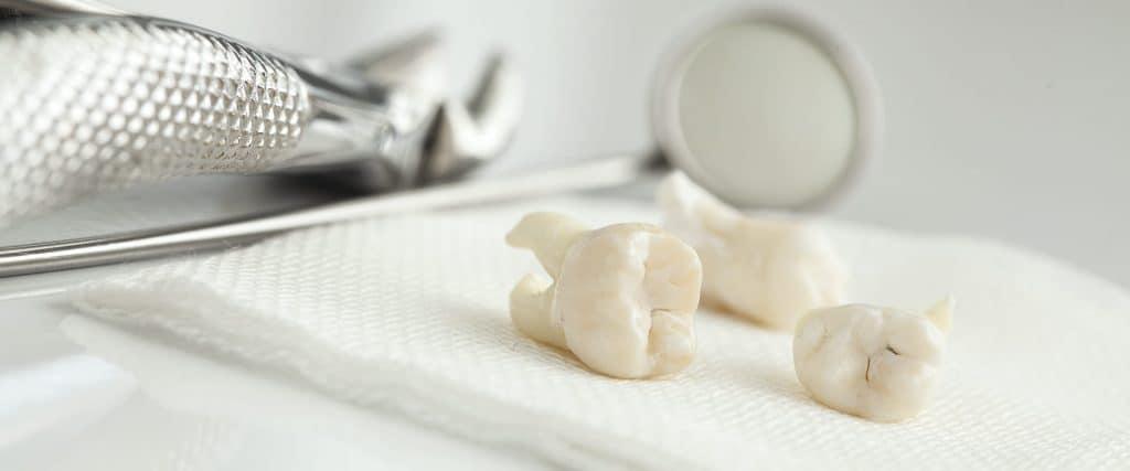 Vađenje zuba - Estrazione dente
