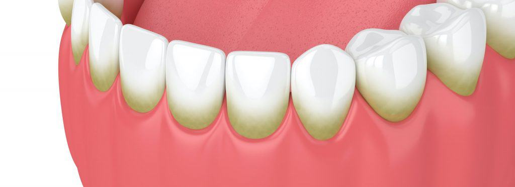 Kamenac na zubima - Tartaro denti