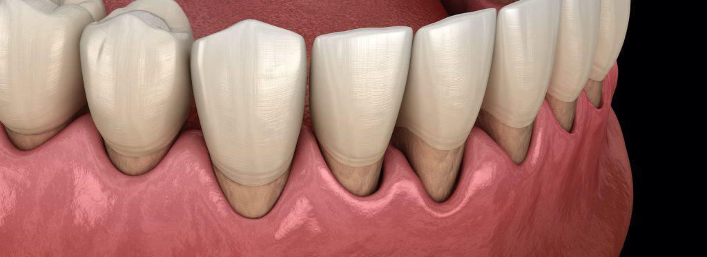 Paradentoza - Parodontite