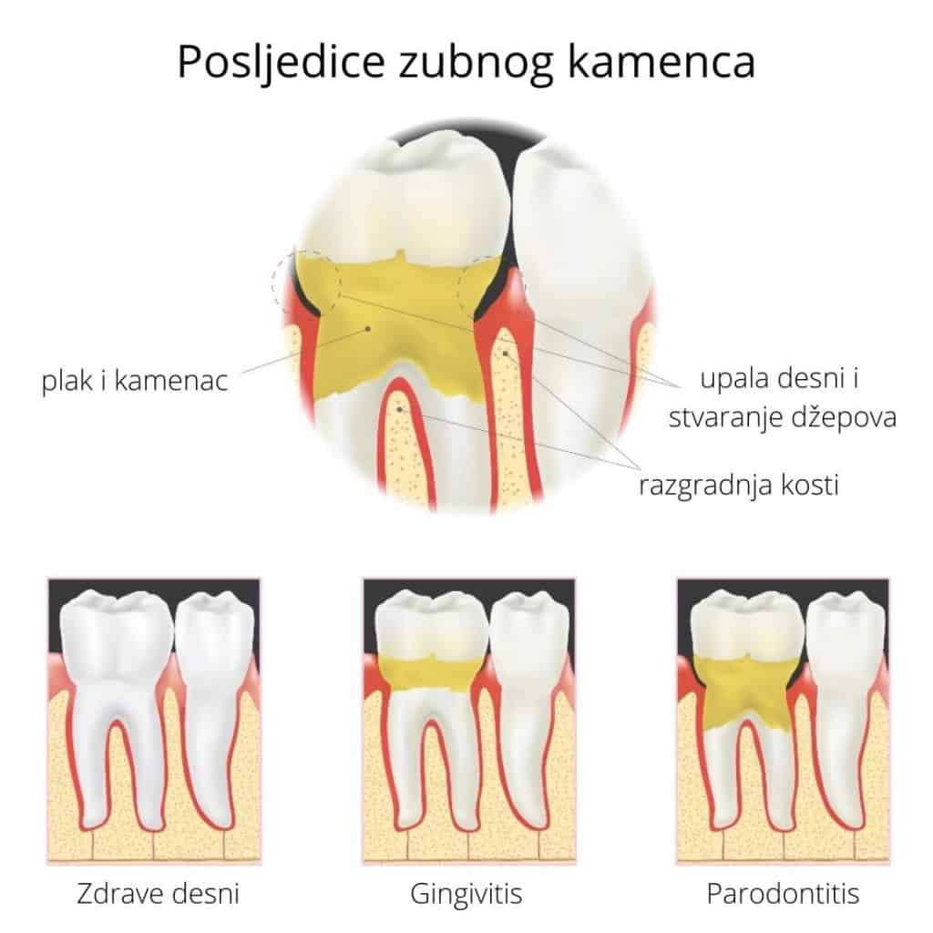 Posljedice zubnog kamenca na desni