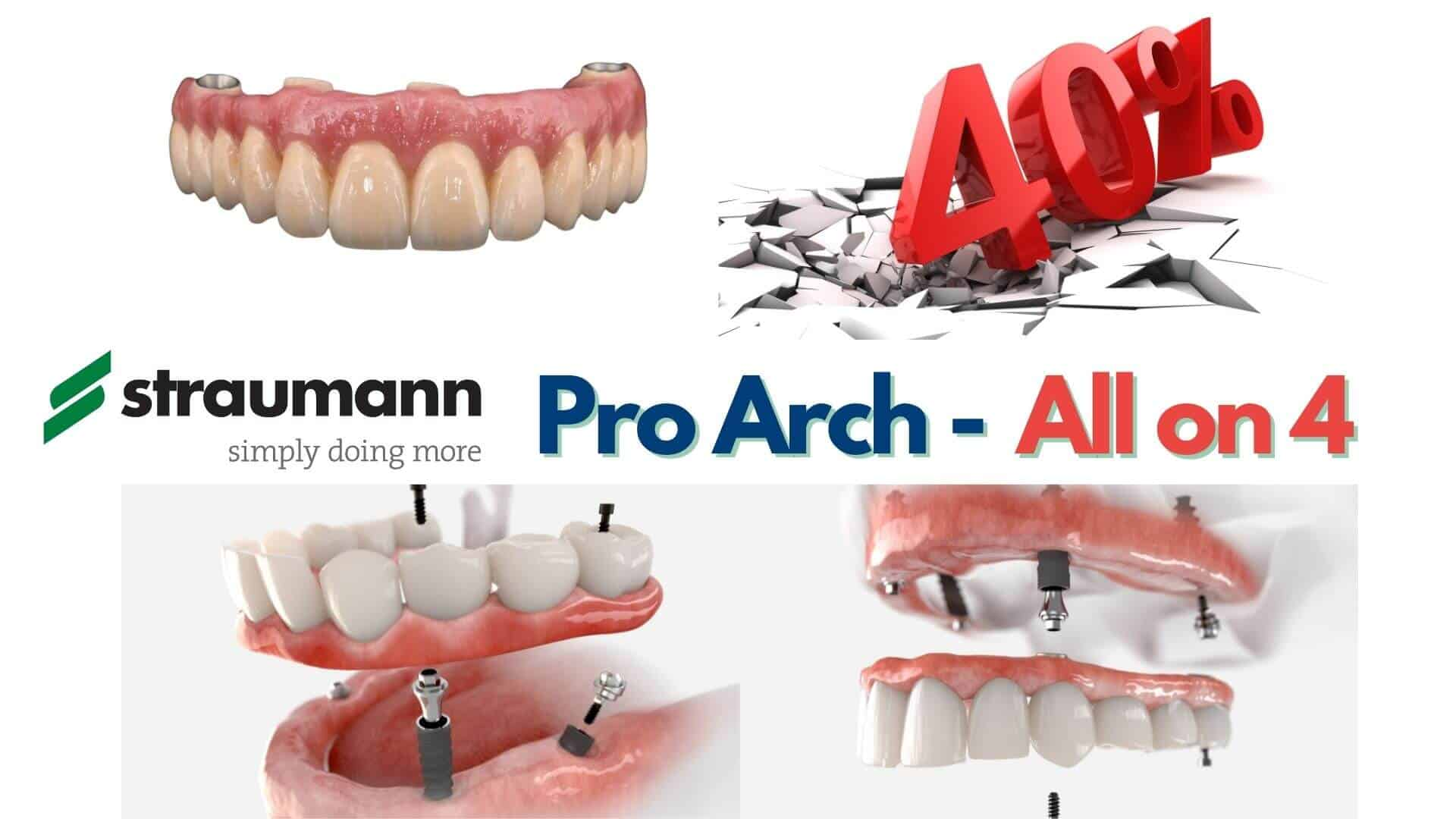 Proarch All on 4 40%