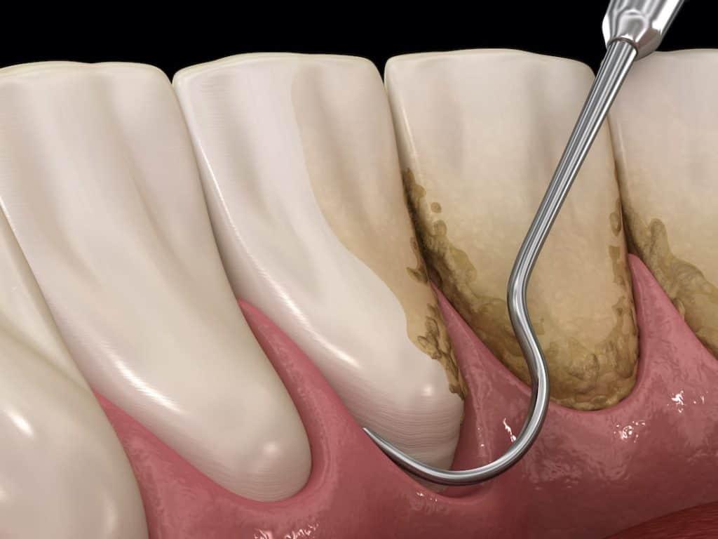 Kiretaža zubi - Curettage dentale
